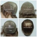 LJC304 Parrucca Intera Calotta Pelle Sottile e Lace Frontale Schiarito